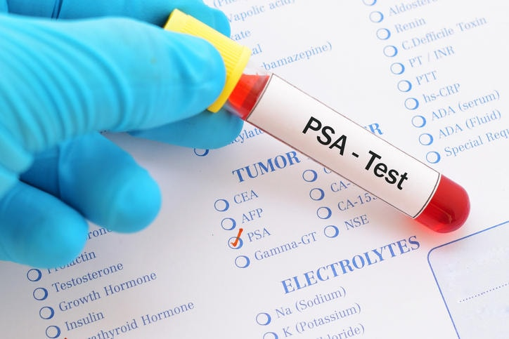 Fotografia di una provetta con la scritta PSA test