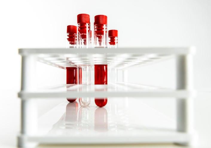 Fotografia di alcune provette di sangue