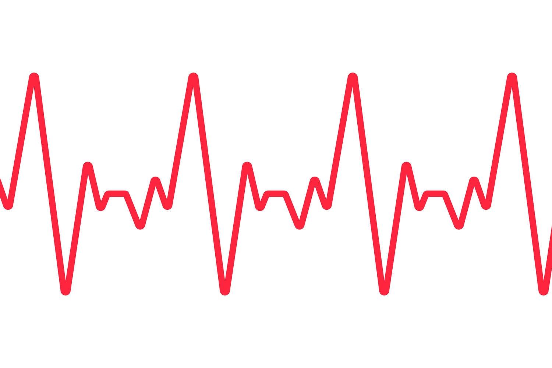 Tracciato dei battiti cardiaci su sfondo bianco