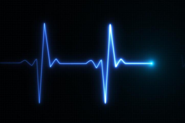 Fotografia di un grafico che riproduce un battito cardiaco