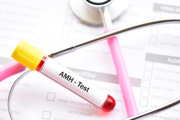 Provetta con la scritta AMH test
