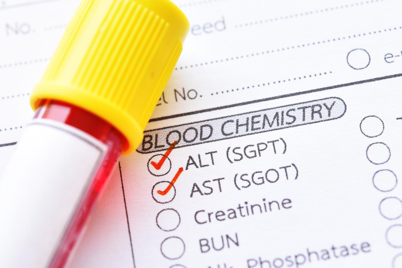 Richiesta per esami del sangue, con le transaminasi crociate