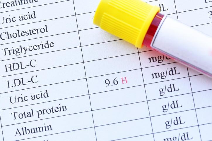 Provetta di sangue appoggiata su un referto di un esame di acido urico