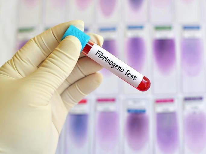 """Provetta di sangue con la scritta """"Fibrinogeno"""""""