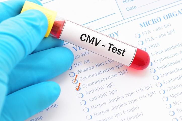 Fotografia di una provetta del sangue con la scritta CMV