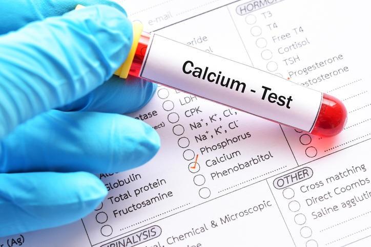 Provetta di sangue con la scritta Calcium