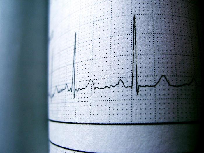 Fotografia di un referto di ECG