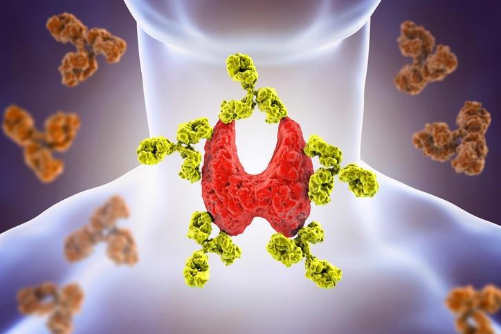 Ricostruzione grafica di anticorpi anti-tiroidei che attaccano la tiroide