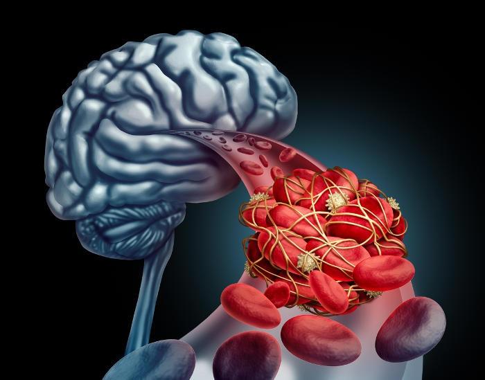Rappresentazione grafica di un coagulo che va a bloccare il passaggio del sangue verso il cervello