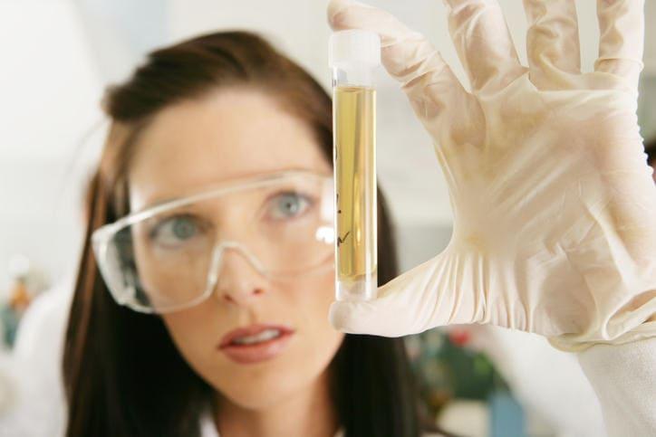 Provetta di urine per l'esame dell'urobilinogeno