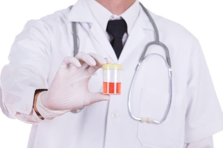 Campione di urina di colore rosa a causa della presenza di sangue.