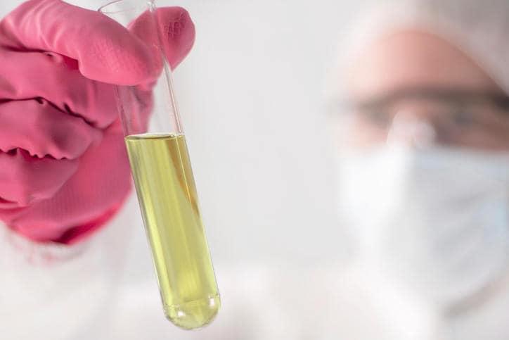 Provetta contenente un campione di urine