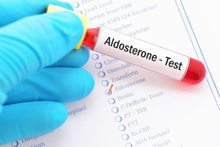 Fotografia di una provetta per l'esame dell'aldosterone