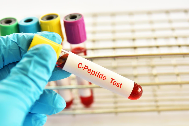 Provetta di sangue con la scritta C-peptide test