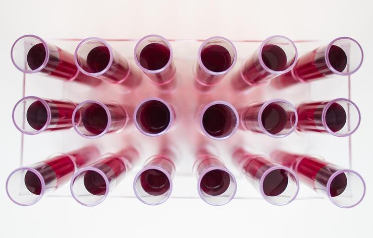 Fotografia con provette piene di sangue