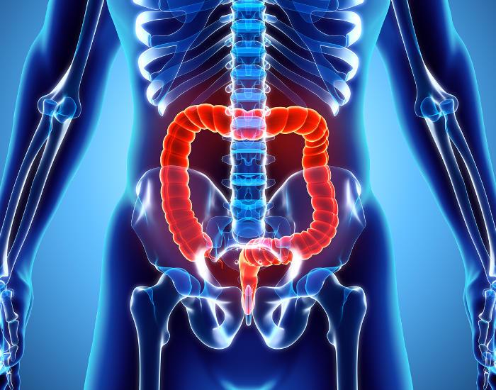 Rappresentazione grafica della posizione anatomica del colon