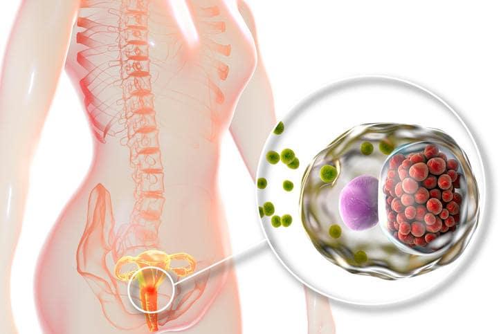Esemplificazione grafica del sito di infezione della malattia infiammatoria pelvica