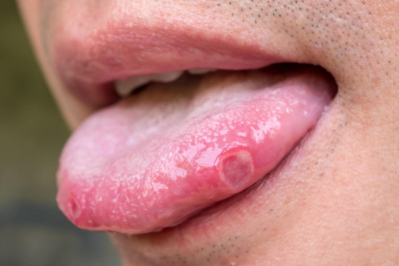 Afta sul lato della lingua