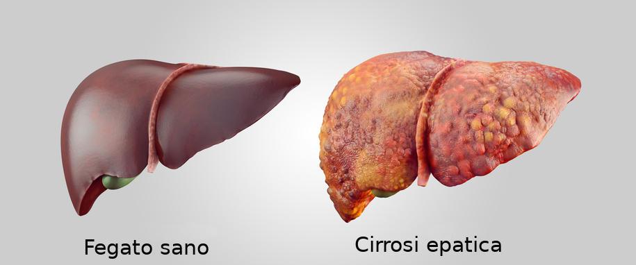 Rappresentazione grafica realistica delle differenze tra un fegato sano e uno in cirrosi