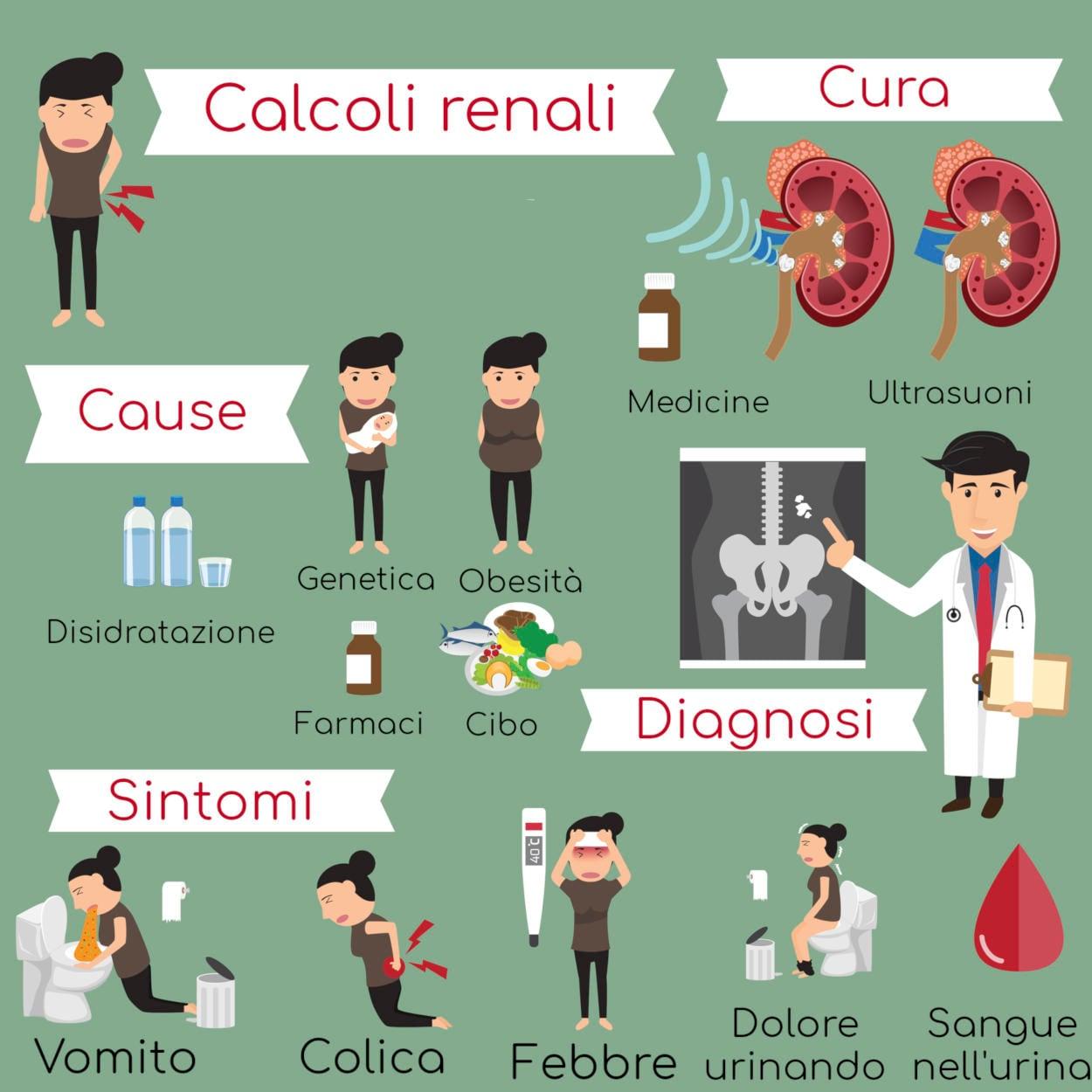 Infografica riassuntiva con cause, sintomi e terapia dei calcoli renali