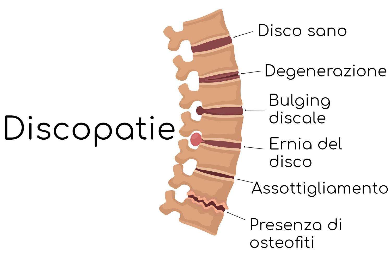 Patologie del disco intervertebrale
