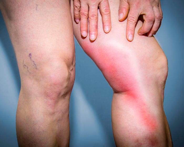 Fotografia di una flebite su una gamba