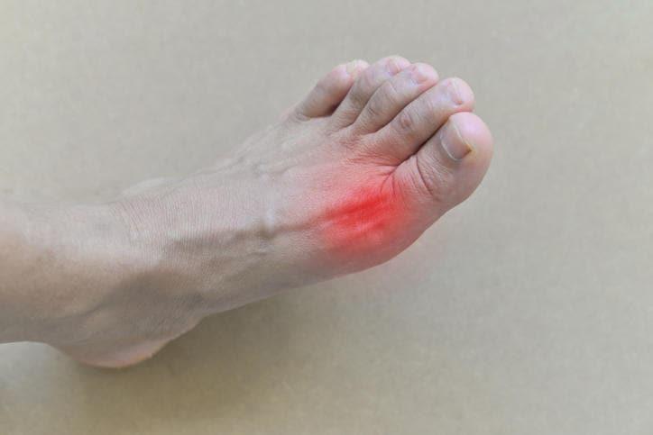 Fotografia che mostra la tipica localizzazione del dolore da gotta sull'alluce del piede
