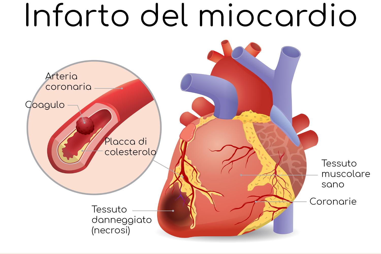 Schematizzazione del meccanismo alla base dell'infarto