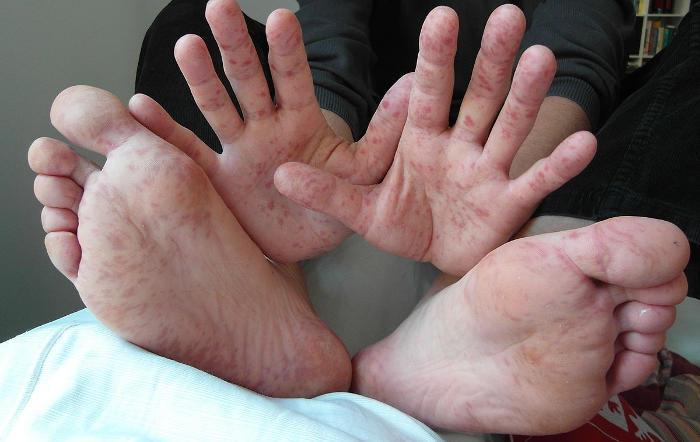 Primo piano di mani e piedi di un adulto colpito dalla mani piedi bocca