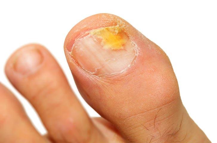 Primo piano di un'unghia dell'alluce  colpita da onicomicosi