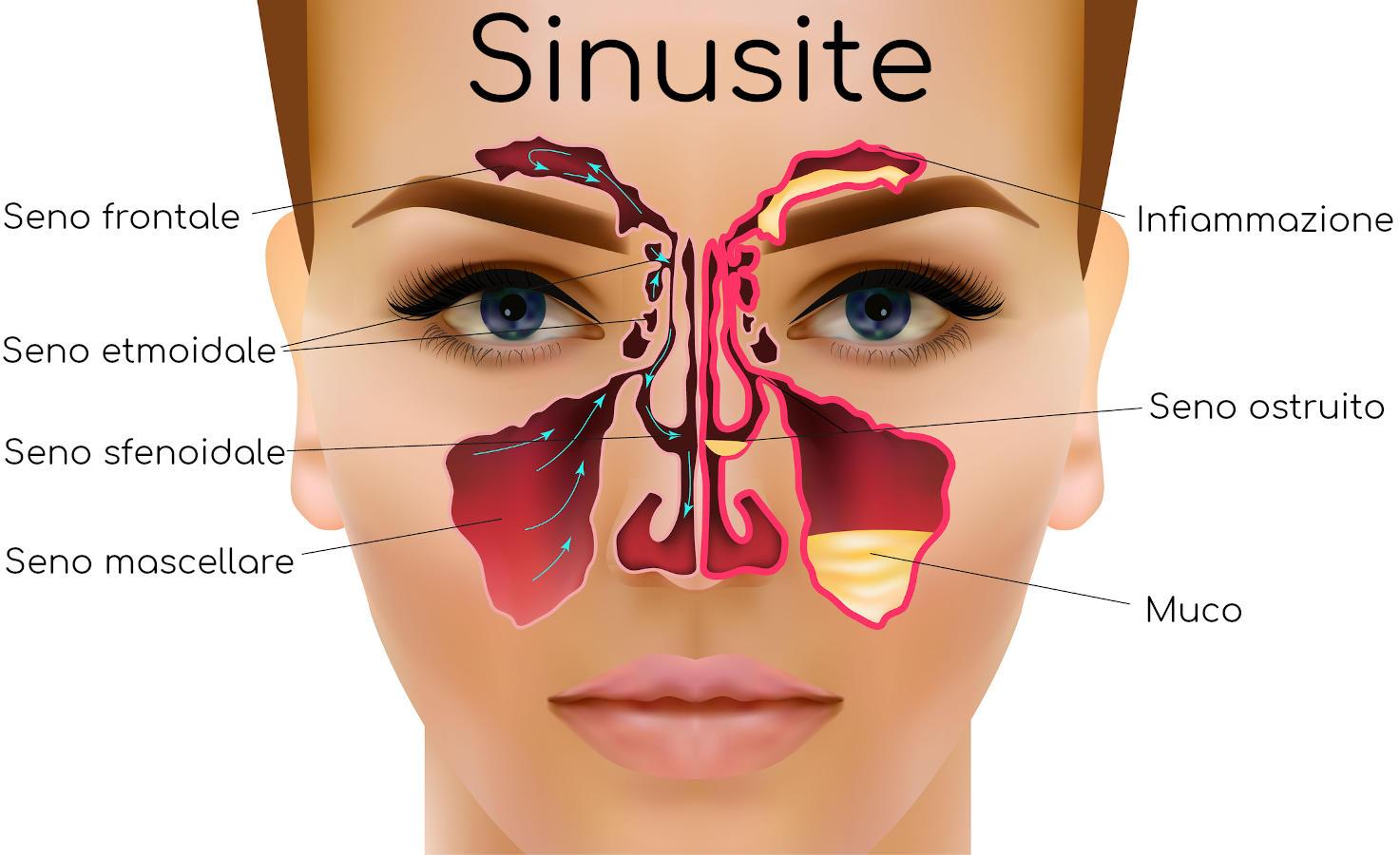 Seni infiammati e sinusite