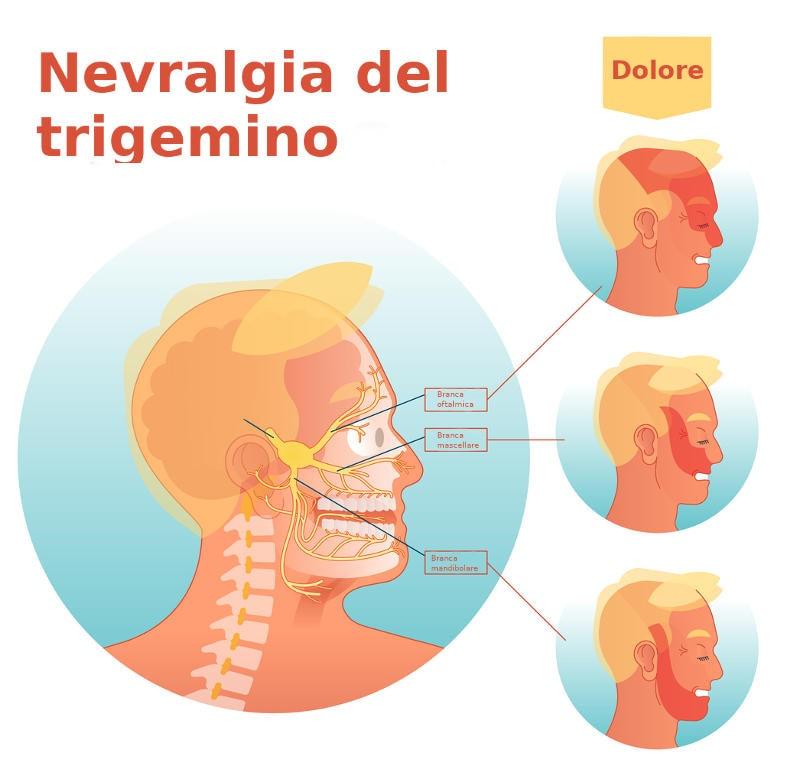Disegno delle tre branche del trigemino, con le corrispondenti zone di comparsa del dolore