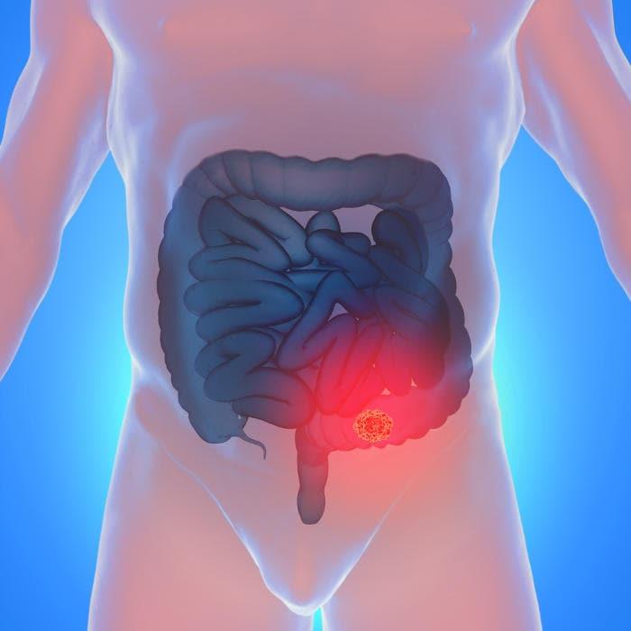 Illustrazione grafica di un tumore al colon retto