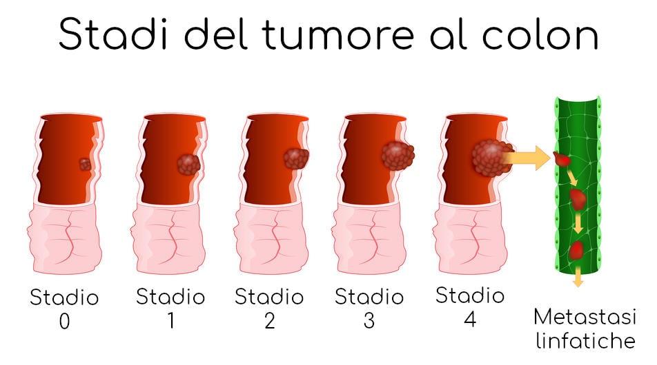Visualizzazione delle differenze tra i diversi stadi del tumore al colon