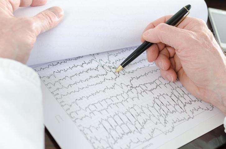 Medico che analizza un elettrocardiogramma alla ricerca di aritmie