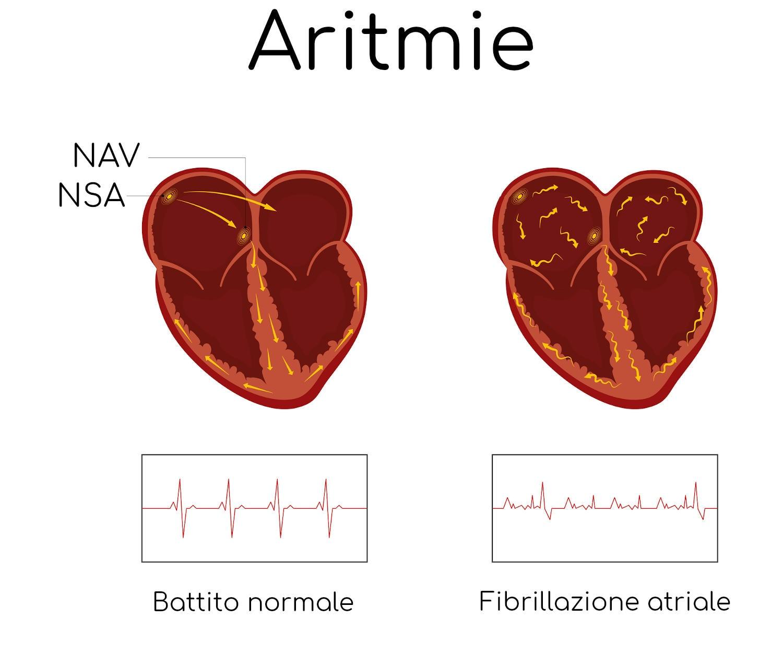 Aritmie e nodo senoatriale