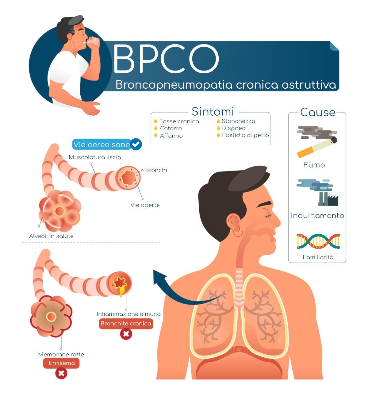 Infografica riassuntiva con sintomi e cause della BPCO