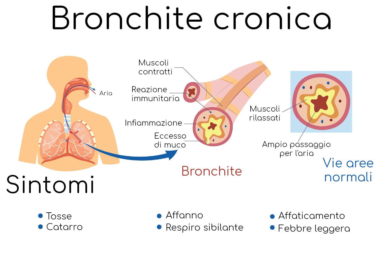 Infografica sulla bronchite cronica