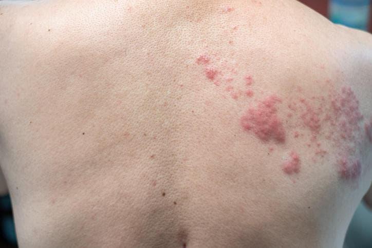Fotografia di herpes zoster sulla schiena