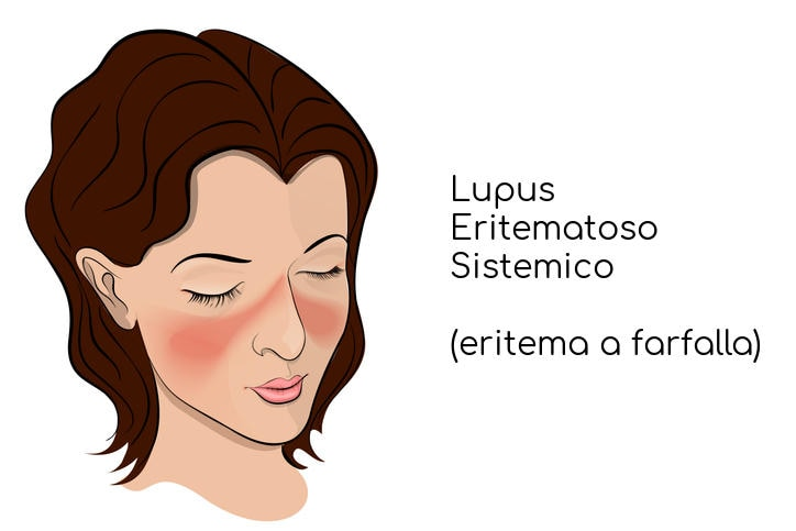 Eritema a farfalla tipico del lupus