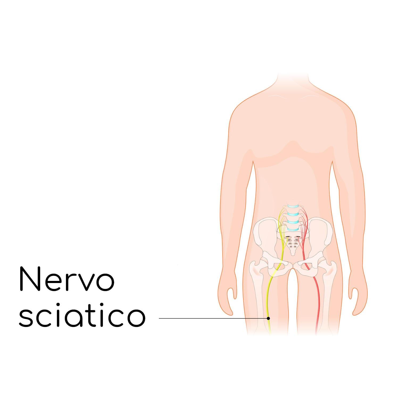 Posizione del nervo sciatico