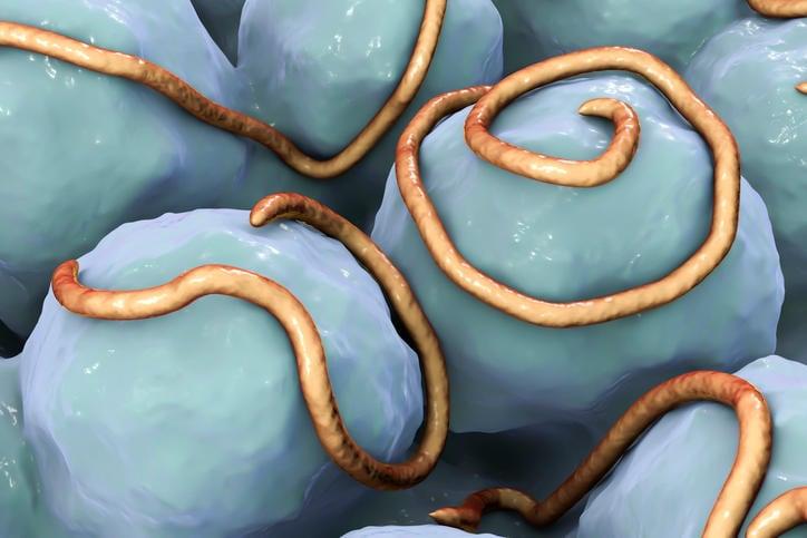 Ricostruzione grafica di ossiuri nell'intestino