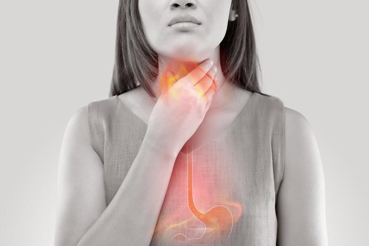 Donna che si tocca la gola a causa del fastidio causato dal reflusso