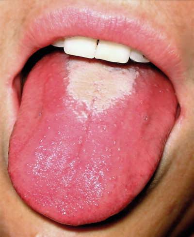Immagine di una lingua arrossata dalla scarlattina