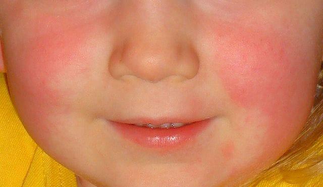 Immagine di un viso di bimbo colpito da scarlattina