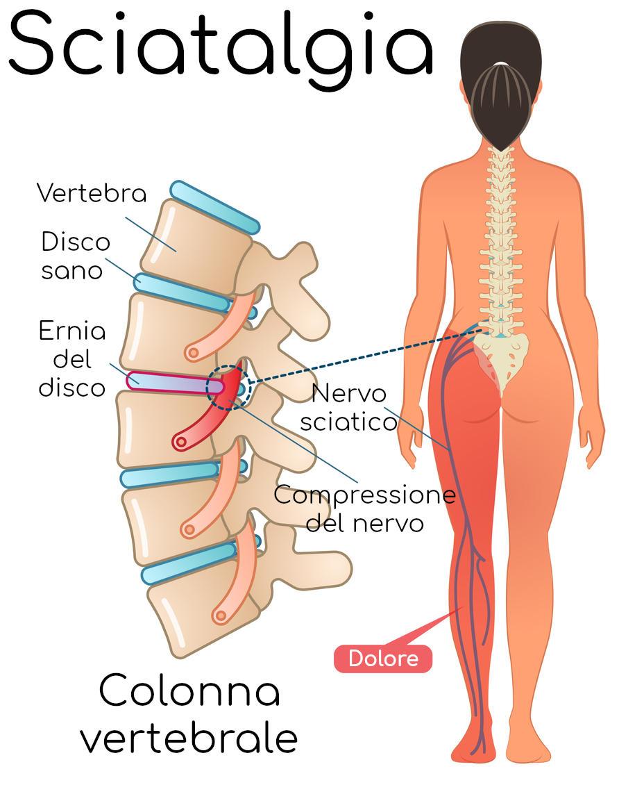 Sciatalgia da ernia del disco, anatomia semplificata