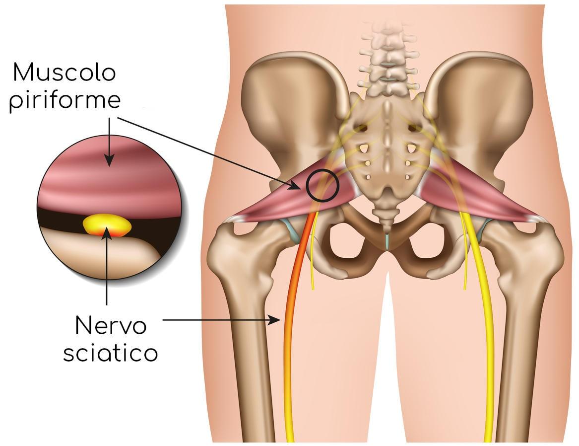 Compressione del nervo sciatico ad opera del piriforme