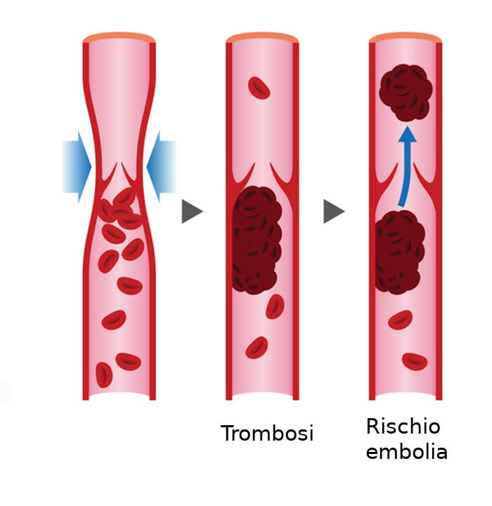 Rappresentazione schematica della trombosi venosa profonda