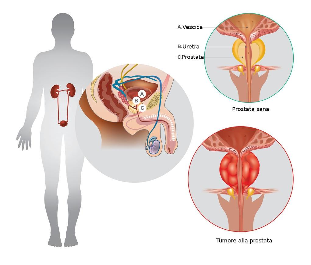 Infografica riassuntiva dell'anatomia del tumore alla prostata