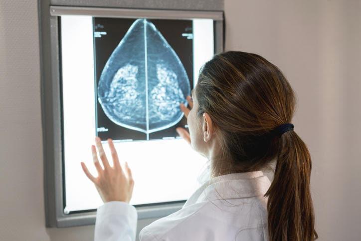 Ginecologa che osserva l'esito di una mammografia